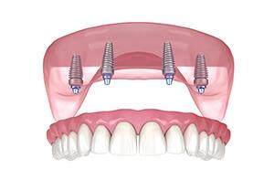 Implant Over Denture